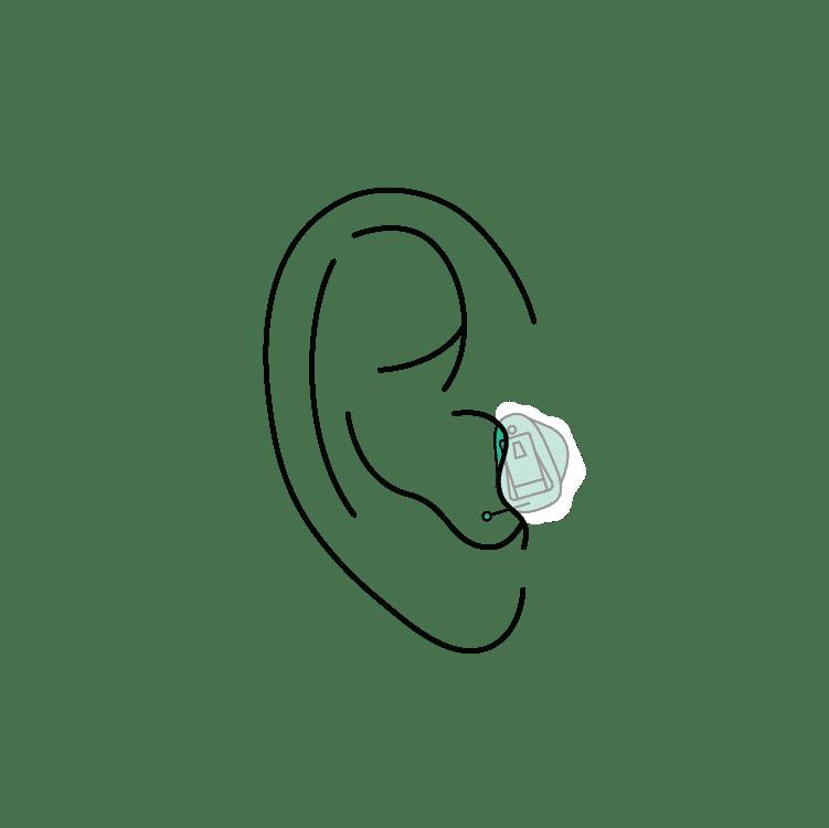 CIC hearing aids los angeles ca