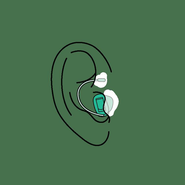 RIC hearing aids los angeles ca